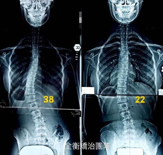 14歲脊椎側彎38度女孩 2