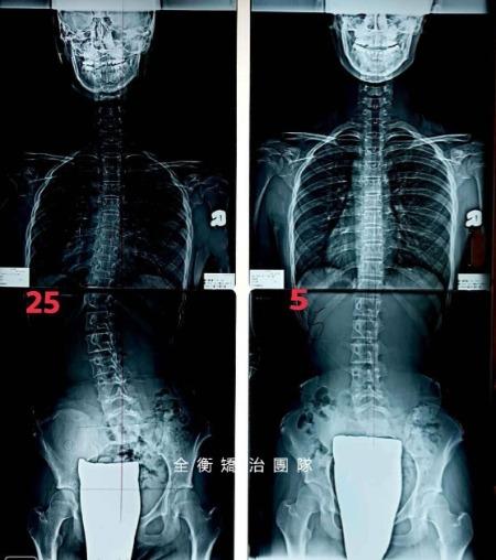 12歲脊椎側彎25度女孩 2