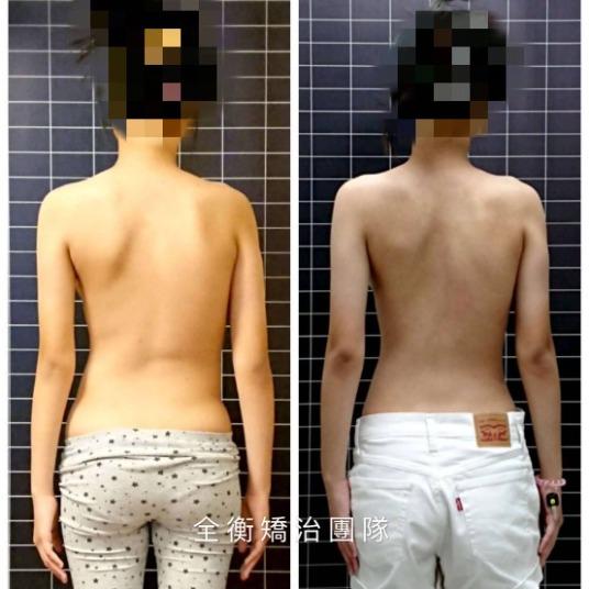 15歲脊椎側彎35度女孩1