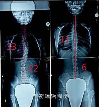 10歲脊椎側彎女孩 胸椎33度/腰椎22度 1