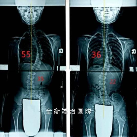 10歲脊椎側彎女孩 胸椎55度/腰椎35度