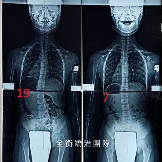 10歲脊椎側彎19度女孩