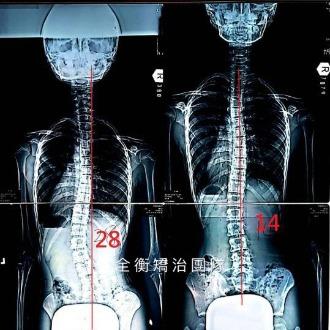 10歲脊椎側彎28度女孩