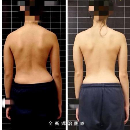 12歲脊椎側彎25度女孩 1