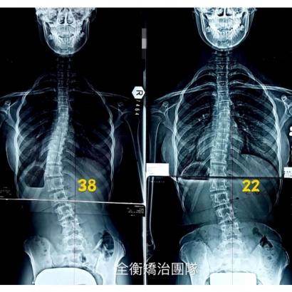 脊椎側彎矯治.jpg