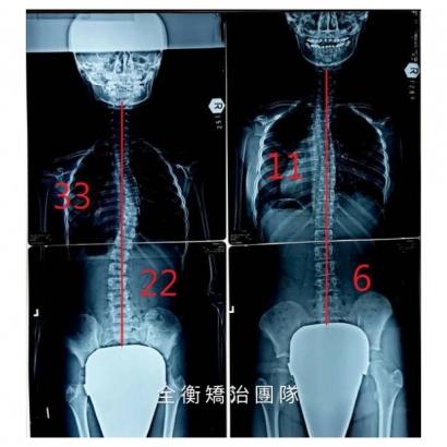案例5:X光 上傳官網.jpg