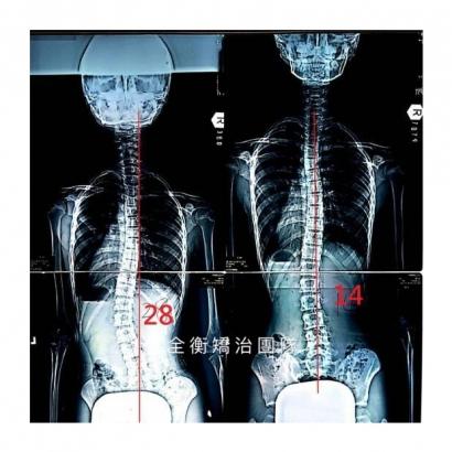 案例8 X光對比 上傳官網.jpg