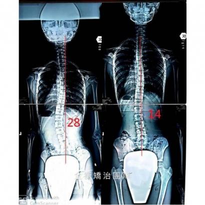 案例8:X光對比 上傳官網.jpg